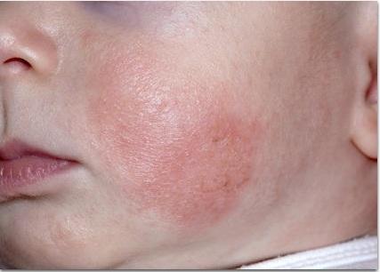 Атопический дерматит критерии диагноза thumbnail