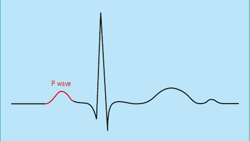 Кардиограмма сердца норма показатели