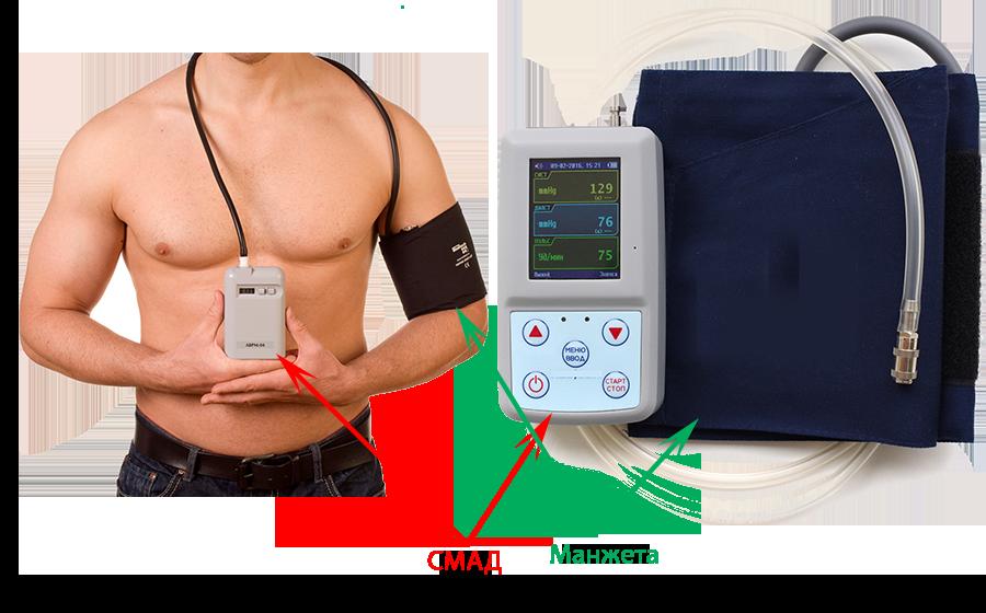 смад, суточный мониторинг артериального давления