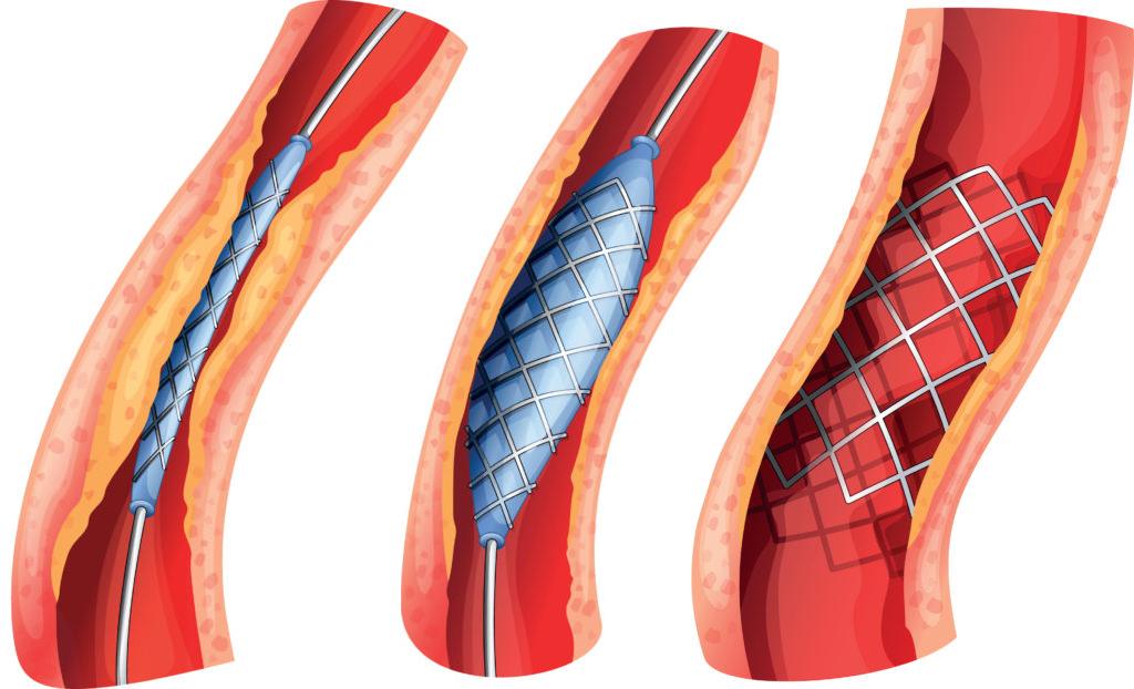 Стентирование сосудов сердца - Доказательная медицина для всех