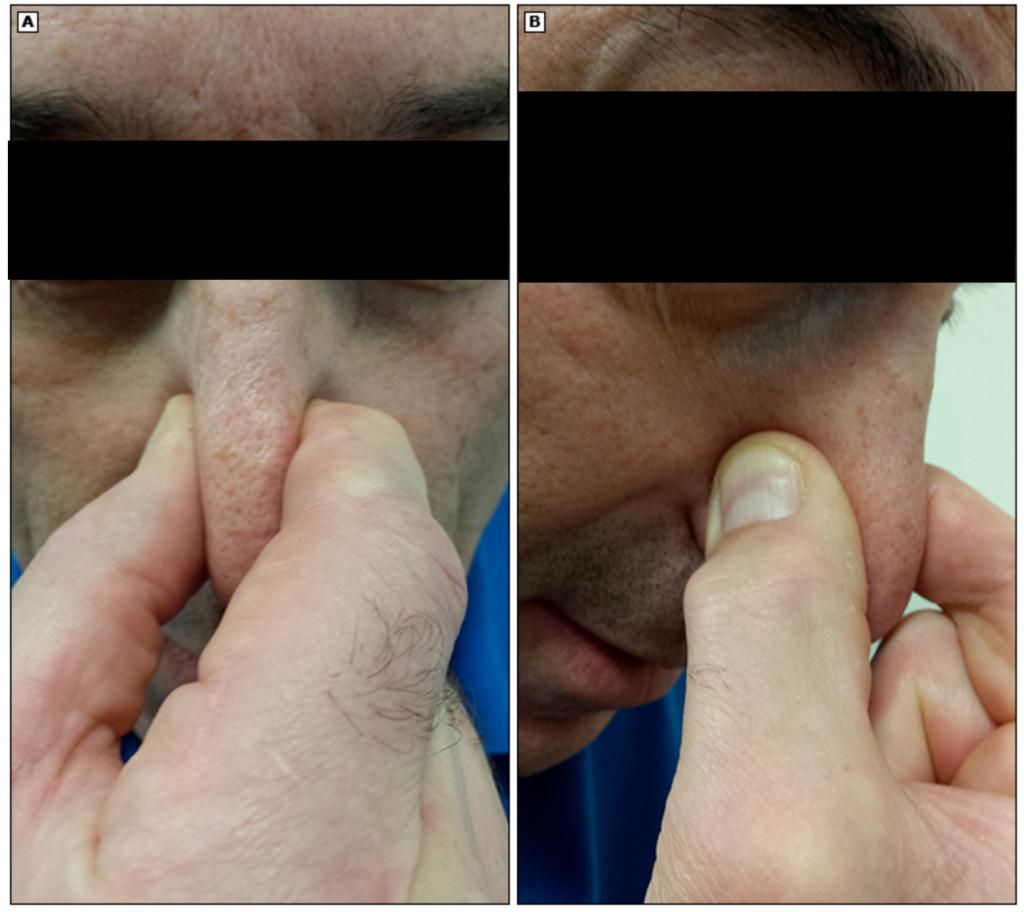 кровотечение из носа, носовое кровотечение