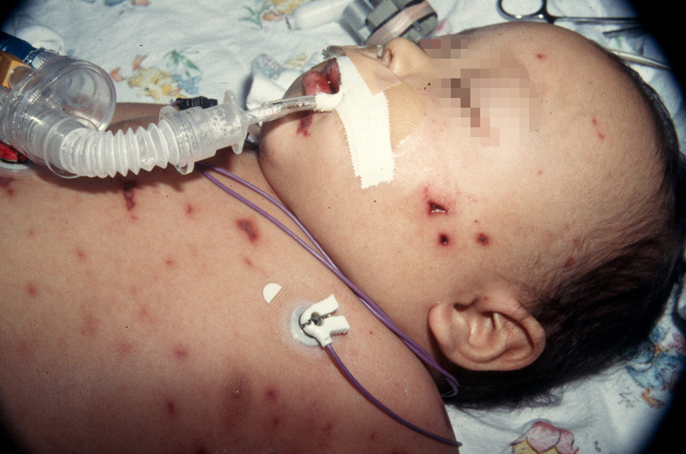 менингококковая инфекция, у детей, менингит, Сыпь у детей