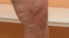 Потемнение ноги при варикозе