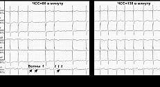 Симптомы мерцательной аритмии, почему она возникает, методы лечения сердечной патологии