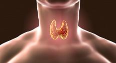 Гипотиреоз - причины, симптомы, лечение
