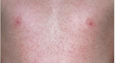 Синдром рука-нога-рот: что это, симптомы, причины, лечение, прогноз