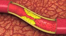 Ишемия стенокардия