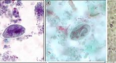 Что такое антитела к аскаридам как лечить