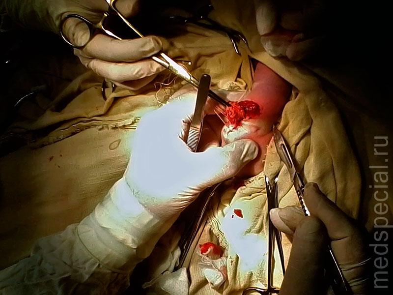 Фото 4 5 послеоперационная рана
