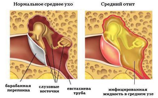 Лямблиоз. лечение