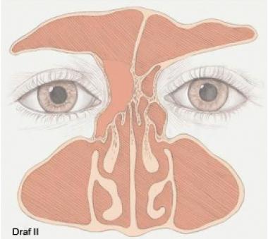 Draf 2, синусотомия, фронтотомия, Draf II