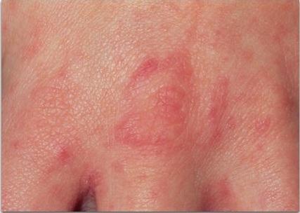 чем отличается чесотка от аллергии