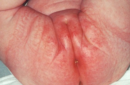 Воздействие микротоков на варикоз