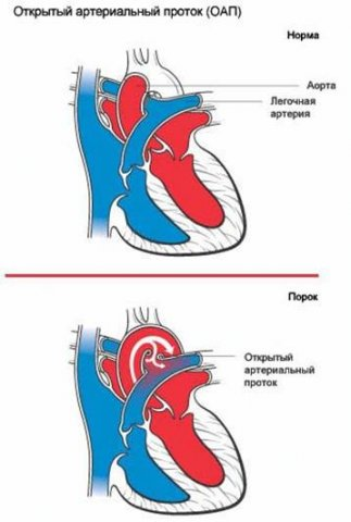 Открытый артериальный (Баталов) проток у детей: благоприятен ли прогноз 25