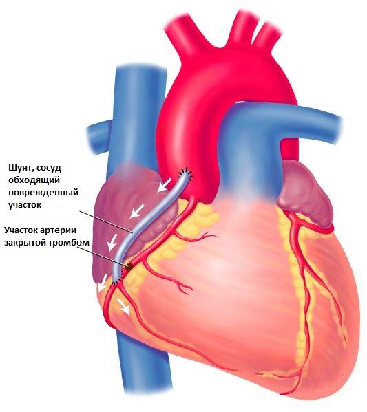 Инфаркт шунтирование сосудов