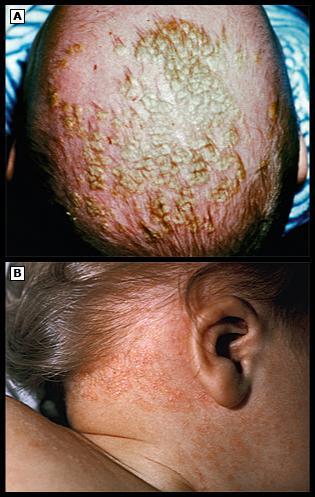 Атопический дерматит и прививка от кори