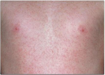статины при гипертонической болезни