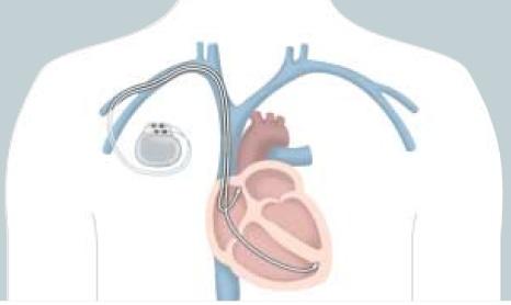 Сам кардиостимулятор