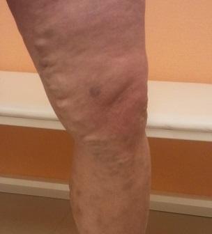 Эффективная мазь от варикоза на ногах отзывы