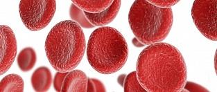 Железодефицитная анемия (ЖДА)